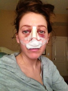 day two after rhinoplasty