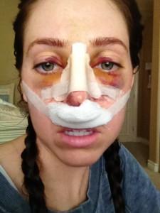 day three after rhinoplasty