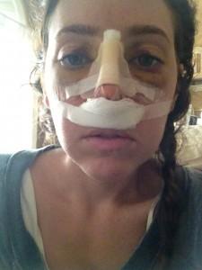 day four after rhinoplasty